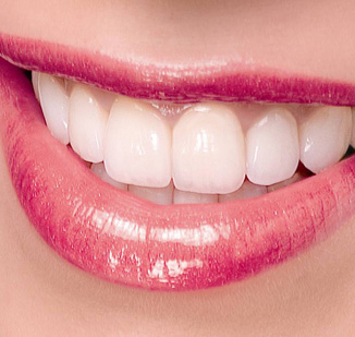 Những ưu điểm của răng sứ CAD/CAM (CEREC, Inlab) tại nha khoa Nụ Cười Mới