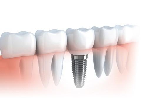 Bạn nên cấy ghép Implant khi nào?