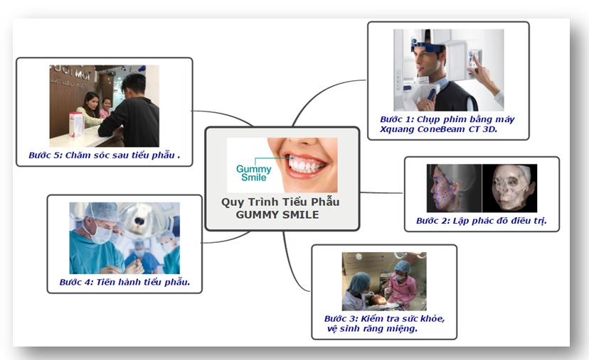 gummy-smile-3