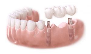 cay-ghep-implant-10