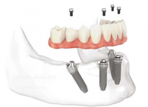 cay-ghep-implant-12