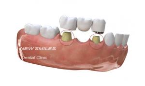 cay-ghep-implant-7